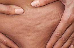 سلولیت چیست ؟ 6 حرکت ورزشی ساده برای کاهش سلولیت در خانمها